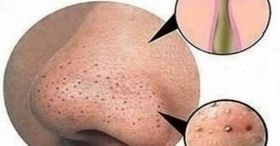 How To Remove Blackheads From Nose